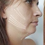 Facetite: Elimina la grasa y flacidez de tu rostro